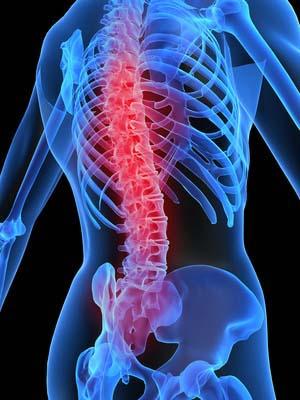 Der Rücken hat sich durchgebogen und tut weh